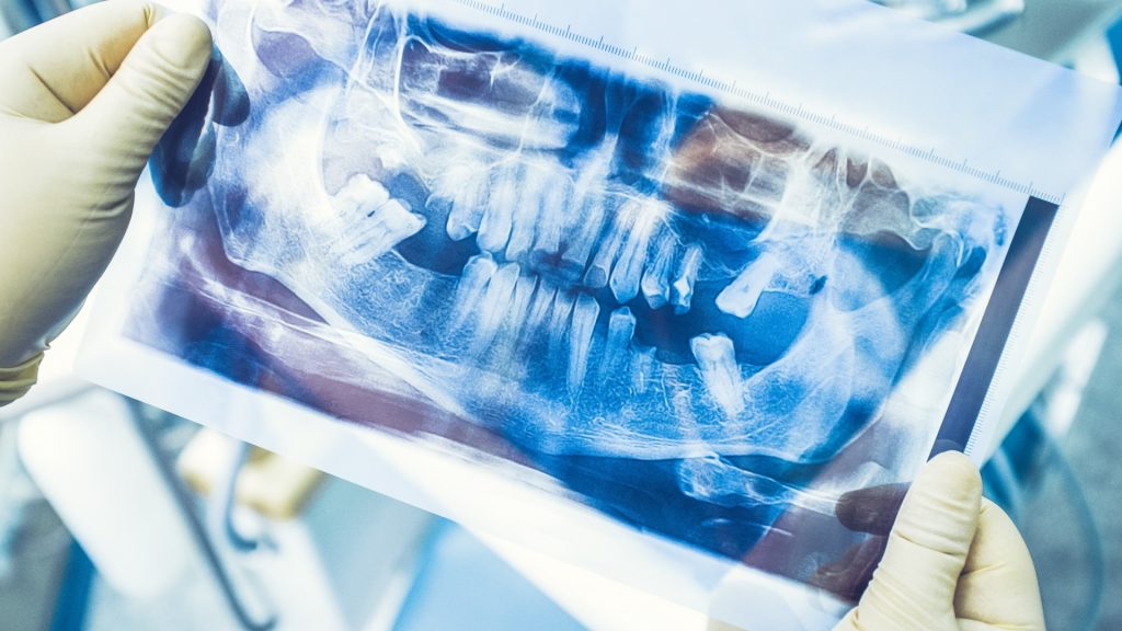 dental extraction in Charlotte